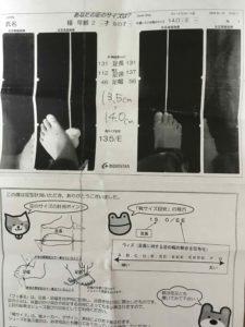 足のサイズの測定写真